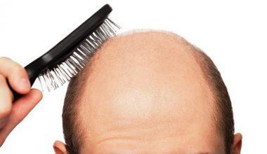 Saçları sarımsaklasak da mı dökmesek sarımsaklamasak da mı dökmesek