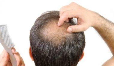 Kanola Yağının Saç Dökülmesine Etkisi