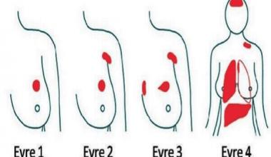 Meme Kanserinde Erken Tanı